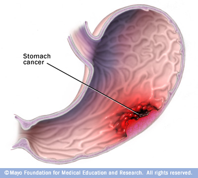 Gastric Cancer - Physiopedia