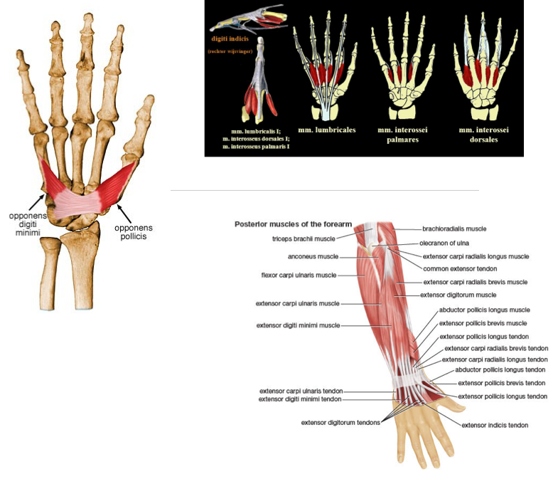 Metacarpal Fractures - Physiopedia of Joint pain right thumb icd 10