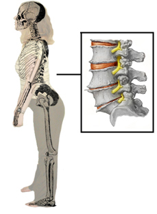 Fitness and Low Back Pain - Physiopedia