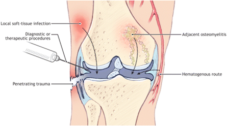 septic arthritis png