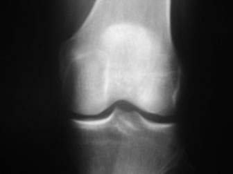 Anterior Cruciate Ligament (ACL) Injury - Physiopedia