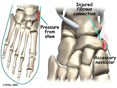 accessory navicular bone - physiopedia, Human Body