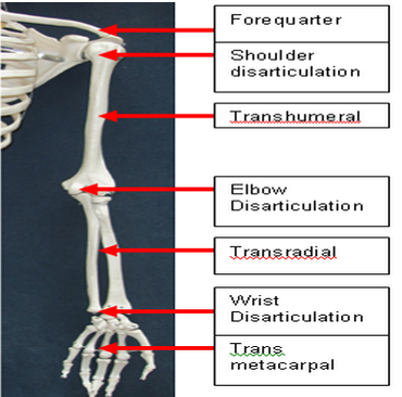 Levels of amputation - upper limb