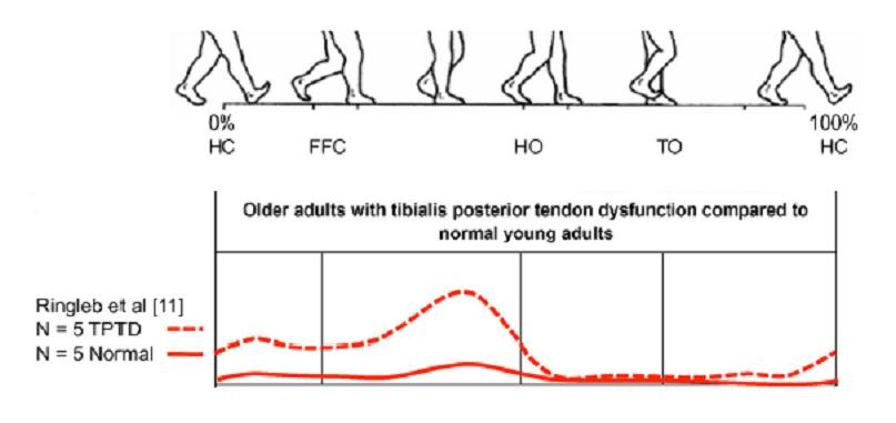 Posterior Tibial Tendon Dysfunction Physiopedia
