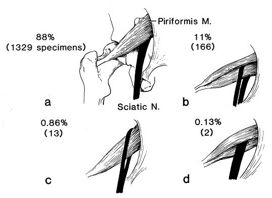 SCIATIC NERVE AND PIRIFORMIS MUSCLE VARIATION.png
