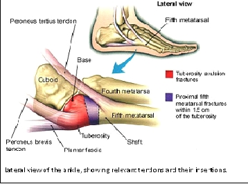 Avulsion Fractures Of The Ankle Physiopedia