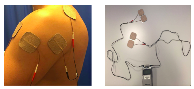 Electrical Stimulation Its Role In Upper Limb Recovery