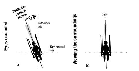 Schematic drawing of pusher patients' perceived postural vertical (SPV) with occluded eyes (A) and while viewing their surroundings (B). The patient's SPV shows a marked ipsiversive deviation from the earth-vertical with occluded eyes.