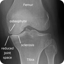 Radiograph for knee OA.jpg