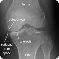 Figure 2 Radiograph for knee Xray Knee Osteoarthritis