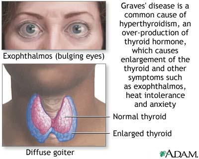 Grave S Disease Physiopedia