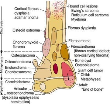 Ewing's Sarcoma - Physiopedia