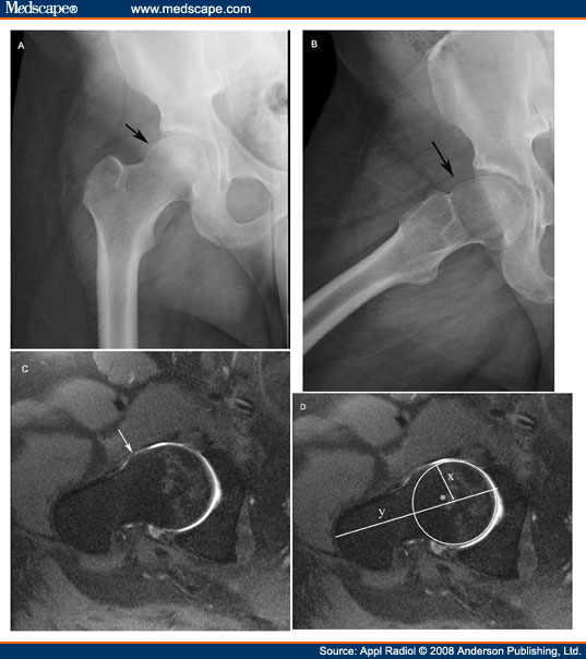 Diagnostic Imaging of the Hip for Physical Therapists - Physiopedia