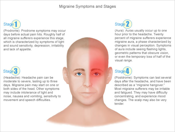 Stages of A Migraine