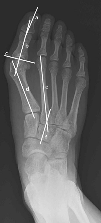 The severity of the hallux deformity is measured by (A) hallux valgus angle and (B) intermetatarsal 1-2 angle