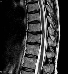 An MRI showing a Transverse myelitis lesion (the lesion is the lighter, oval shape at centre-right)
