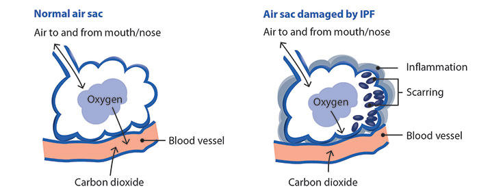 How fibrosis in IPF affects the air sacs in your lungs