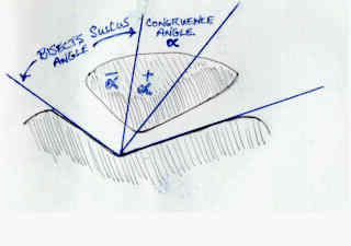 Congruence angle for patellar positioning.jpg