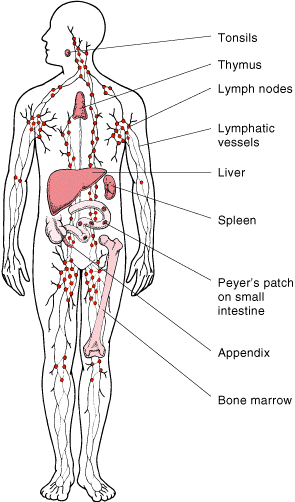 Hodgkin's Lymphoma - Physiopedia