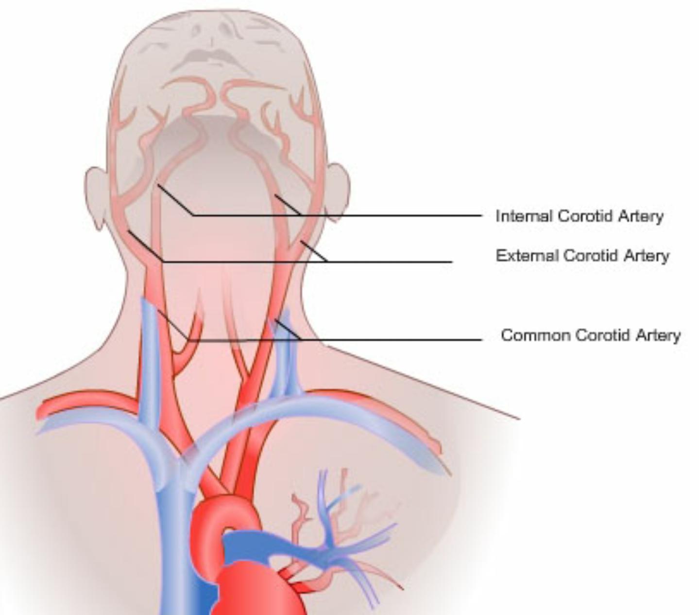 Изгиб сонной артерии симптомы лечение в домашних условиях
