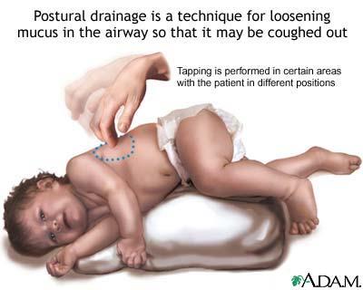 Cyanosis Infant