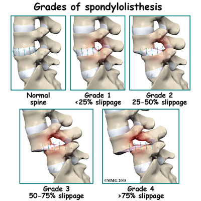 pars defect listhesis Spondylolisthesis and spondylolysis spondylolysis is defect in the pars inter‐articularis whereas as in lysis or grade i and ii listhesis.