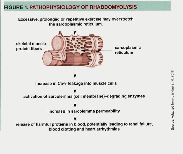 rhabdomyolysis - physiopedia, Skeleton