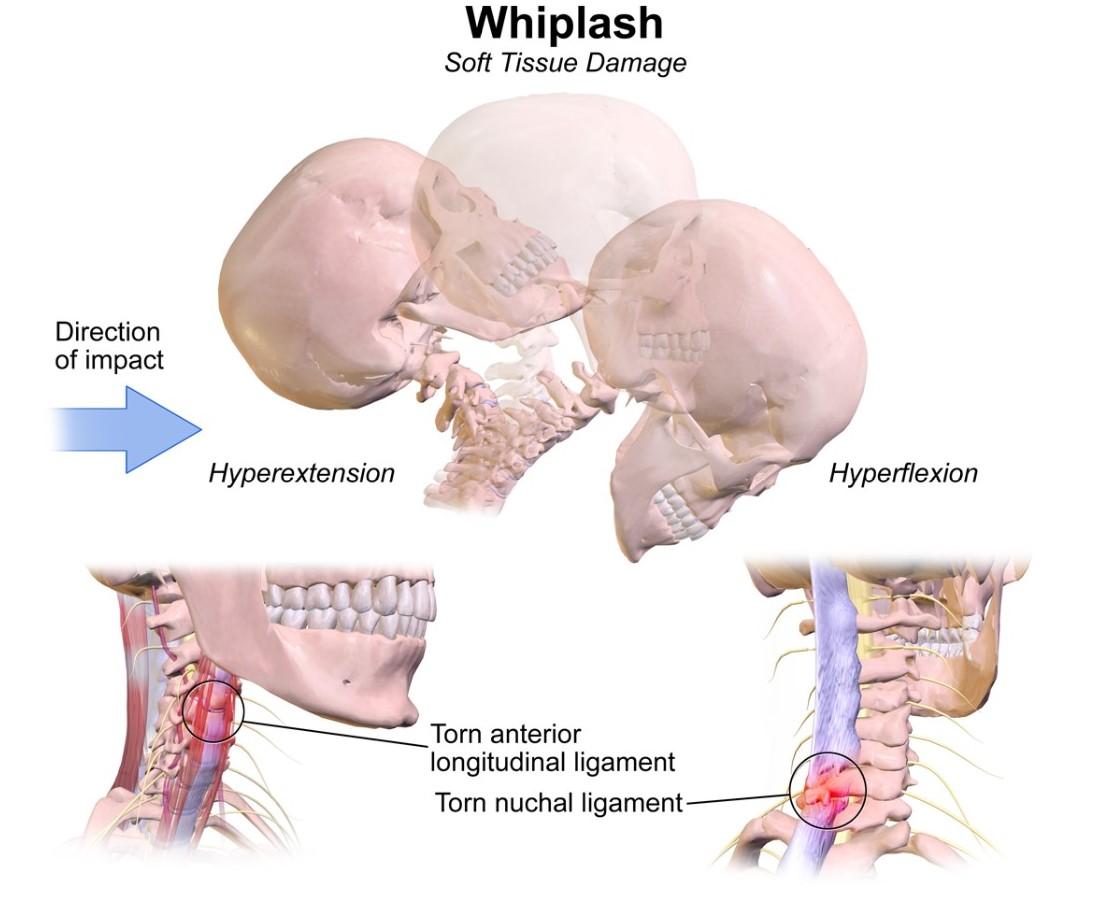 Whiplash Associated Disorders Physiopedia