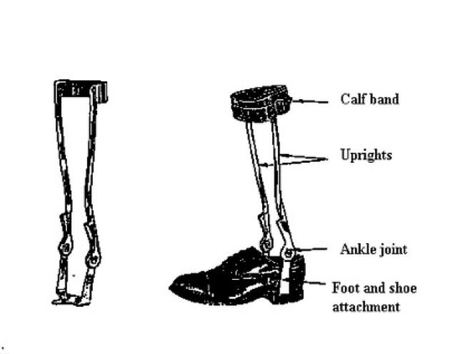 biomechanics for cerebral palsy orthotics