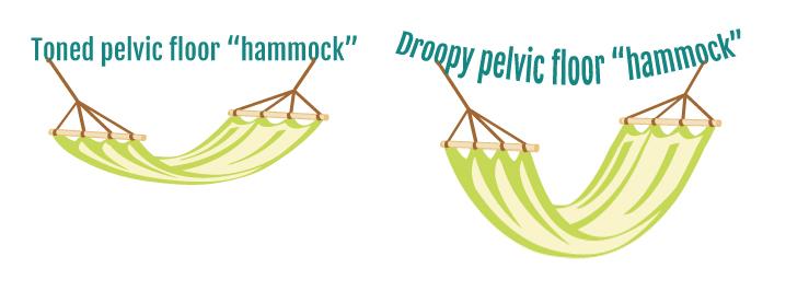 Pelvic Floor Dysfunction - A patient guide.