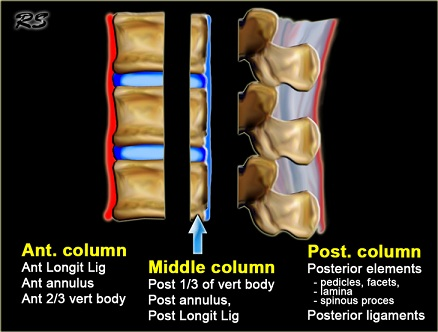 Lumbar Spine Fracture - Physiopedia