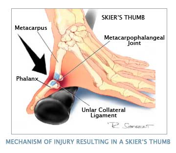 Mechanism of injury by skiing