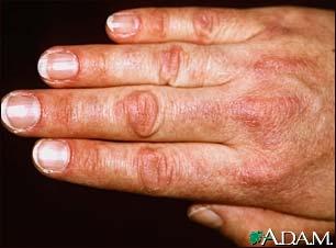 Dermatomyositis - Physiopedia
