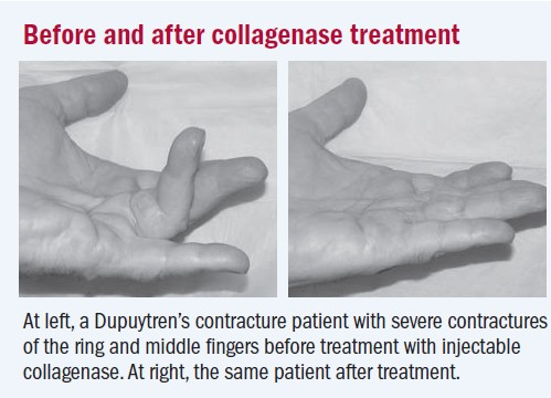 Image 6: Before and after collagenase treatment