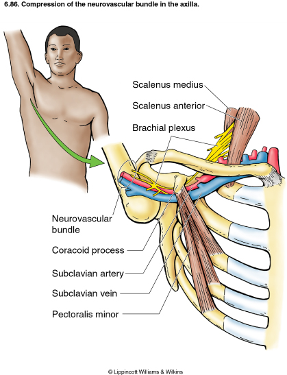 Thoracic outlet syndrome test