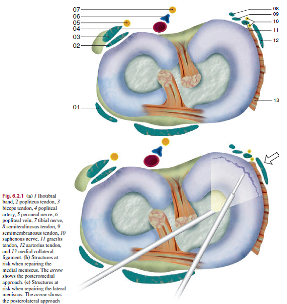 Meniscal Repair - Physiopedia