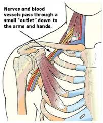 Costoclavicular Syndrome - Physiopedia