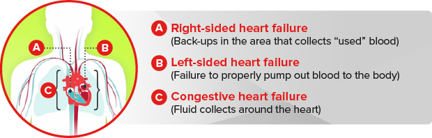 Heart Failure - Physiopedia
