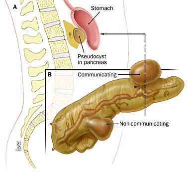 What Can Pancreatitis In Dog