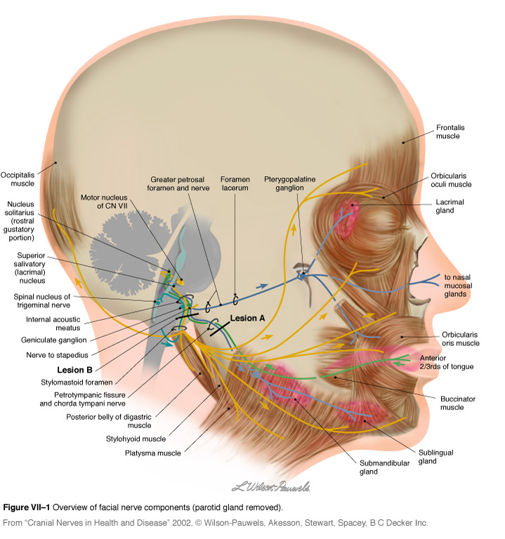 Facial Palsy - Physiopedia