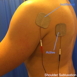 Shoulder Subluxation Picture.png