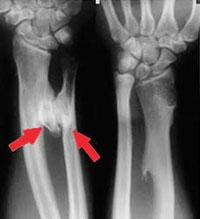Multiple malignant tumors in skeletal muscles adult
