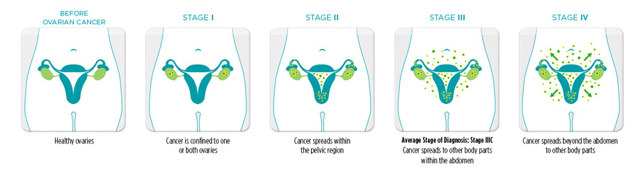 Ovarian Cancer Physiopedia