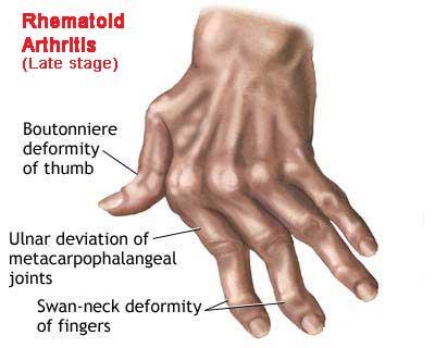 RA Hand 1.png