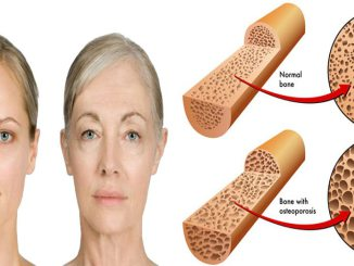 Effects Of Aging On Bone Physiopedia