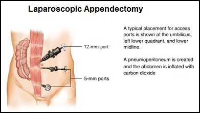 What Is an Appendectomy Surgery and Recovery
