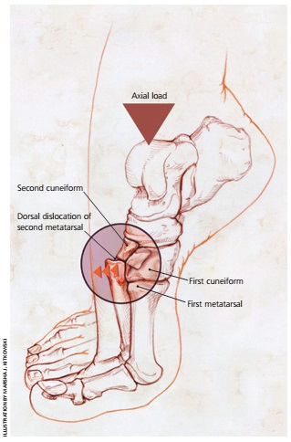 how to tell if metatarsal is fractured