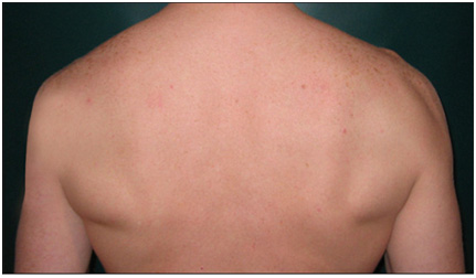 Figure 4- Picture of significant atrophy to the left deltoid and mild atrophy to the teres minor. Adapted from Vitanzo et al.
