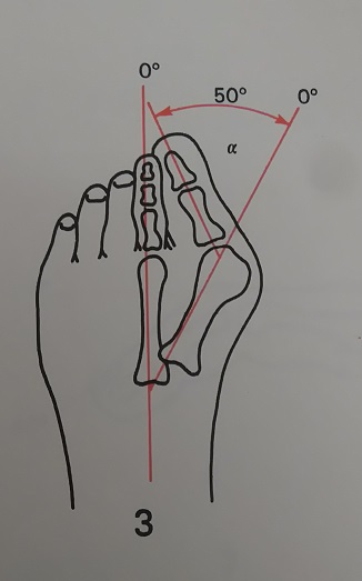 Hallux valgus angle 𝝰: between the axis of the first metatarsal and the first proximal phalanx