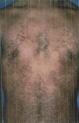 Tinea Versicolor - Physiopedia